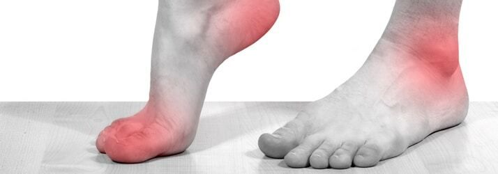 Cover image for How do I recover from Plantar Fasciitis?